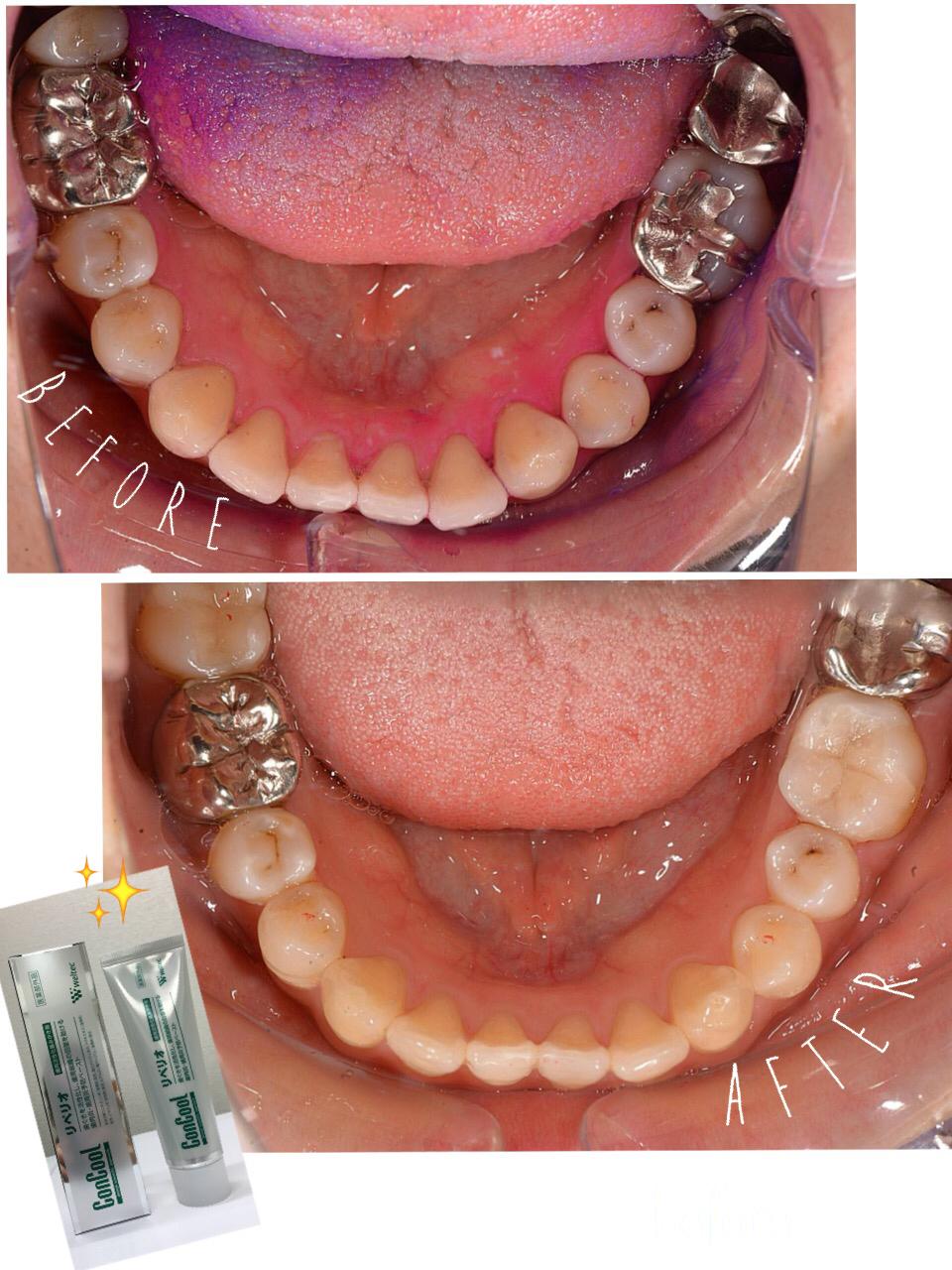リペリオ コンクール 【3ヶ月で実感】リペリオで歯茎再生にチャレンジしよう!